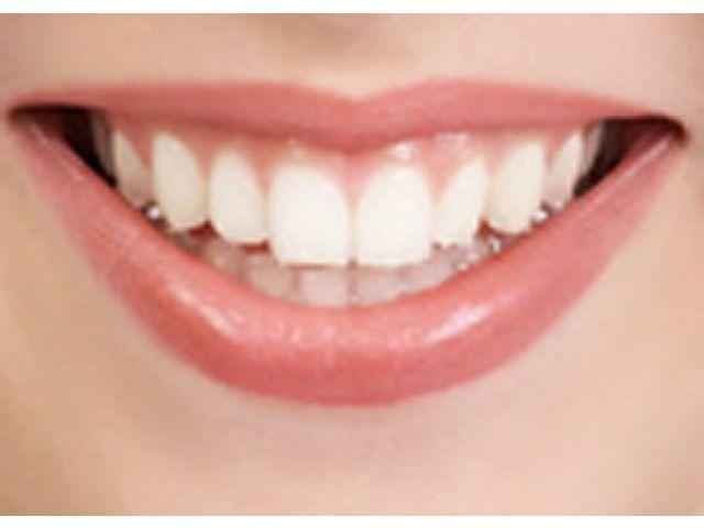 Tips Cara Memutihkan Gigi Yang Kuning Agunkz Screamo Unikom